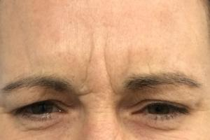 Frown lines before treatment