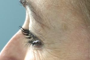 Crow's feet after treatment with Xeomin