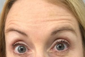 Forehead lines after treatment with Botox Cosmetic