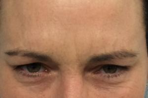 Frown lines after treatment with Botox Cosmetic